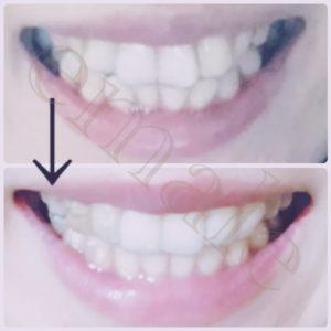 歯列矯正インビザラインビフォーアフター