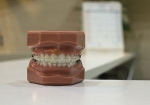ワイヤー歯列矯正